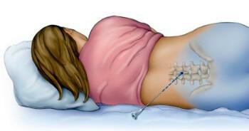фото об эпидуральной анестезии