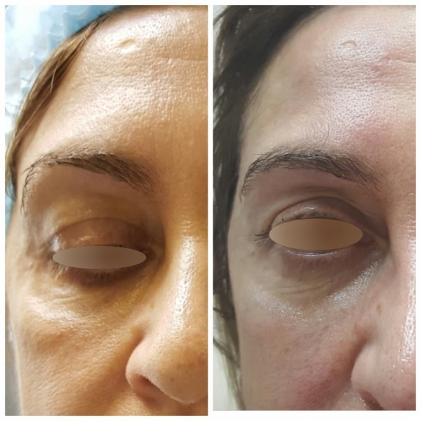 Эффект Тиндаля в косметологии под глазами, на коже губ. Когда наблюдается, как убрать