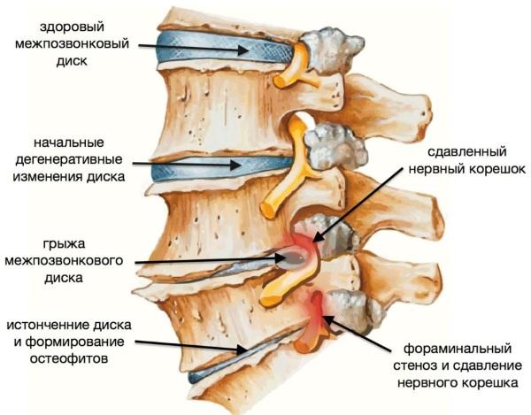 Массажер для шеи и плеч и спины. Какой лучше: роликовый, деревянный, ленточный, электрический
