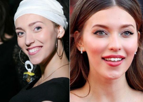 Регина Тодоренко до и после пластики. Фото, вес и рост, татуировки, сколько лет, биография, личная жизнь