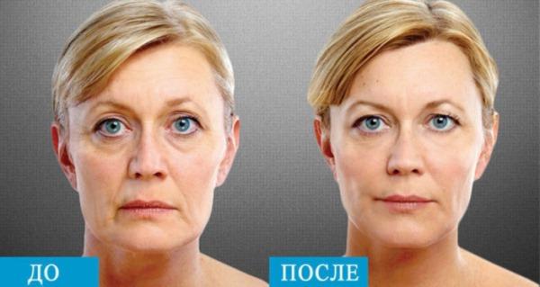 Липолитик Дермахил в мезотерапии для лица. Фото до и после, цена, отзывы