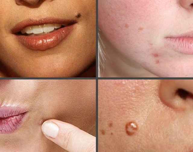 Как лечить папилломы на лице, теле, хозяйственным мылом, препараты, народные средства в домашних условиях