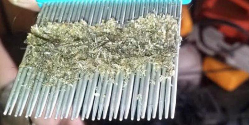 Вычесывание гнид