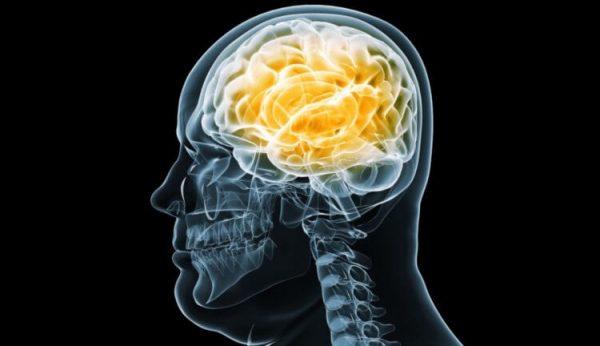brain 750x432 1